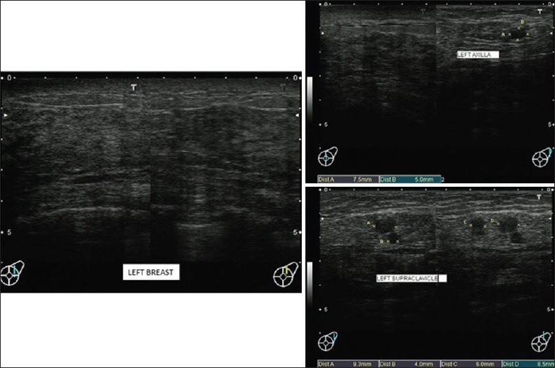 Figure 1: Breast ultrasound showing a left breast ill-defined mass and left axillary and left supraclavicular lymphadenopathy