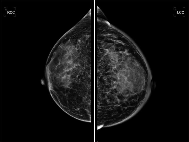 Figure 2: Mammography demonstrating global asymmetry in the subareolar region and significant skin thickening of the left breast