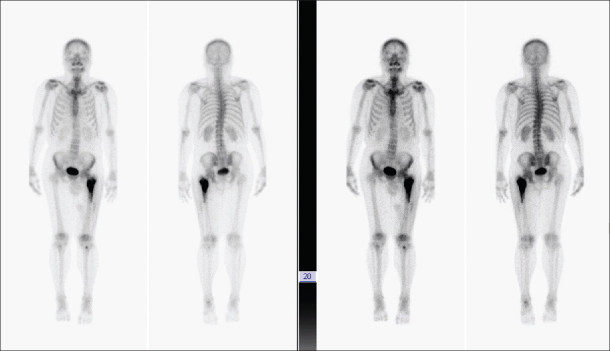 Figure 4: Tc-99 whole-body bone scan revealed intense radioactivity at the left proximal femur, which was consistent with bony malignancy. No other definite bony abnormalities were seen